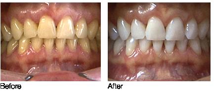 Tooth Whitening in Aldridge Walsall