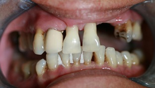 Aldridge Dental Implants Before