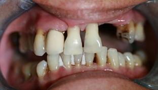 Aldridge Dental Implants Before