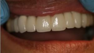 Aldridge Finished Dental Implant Case