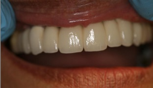 Aldridge Finished Dental Implant Case