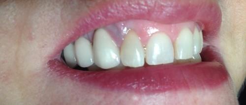 Internal Tooth Whitening in Aldridge After