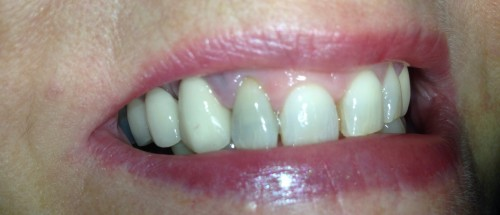 Internal Tooth Whitening in Aldridge Before