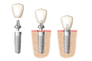 Dentist Walsall dental implant placement
