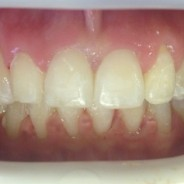 Braces In Aldridge Walsall