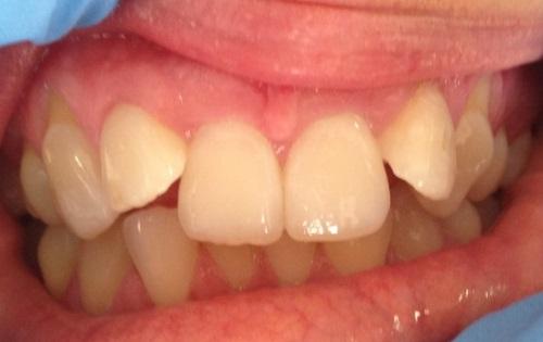 Orthodontics Walsall