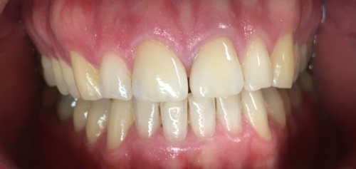 Veneers Aldridge Walsall After