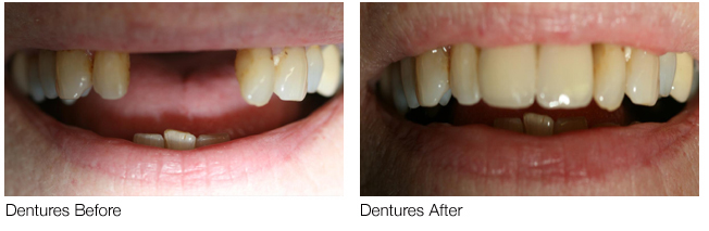 Dentures in Little Aston and Streetly