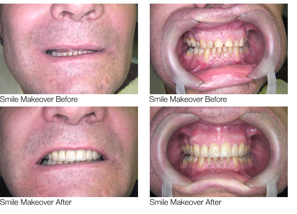 Smile Makeover in Walsall