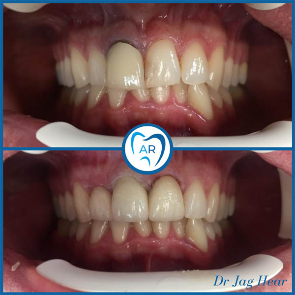 Composite Bonding before & after 1