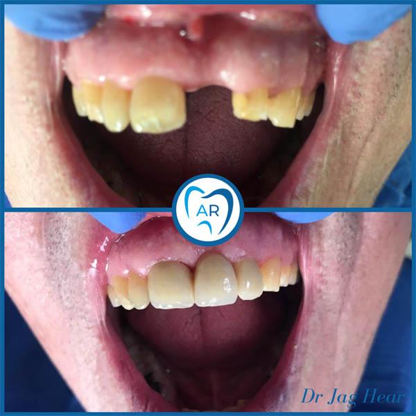 Dental Bridge Before & After 1