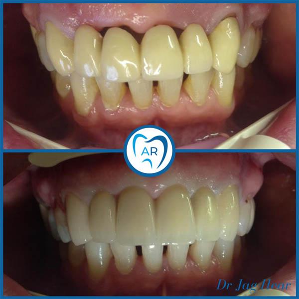 Dental Bridge Before & After 2