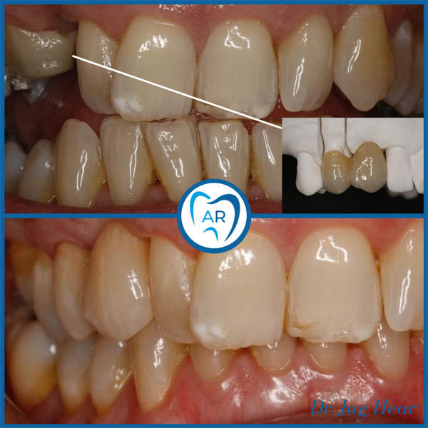 Dental Bridge before and after 4 Walsall