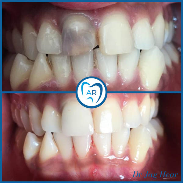 Dental Crown Before & After 1