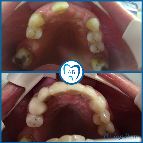 Dental Implant before and after 2 Walsall