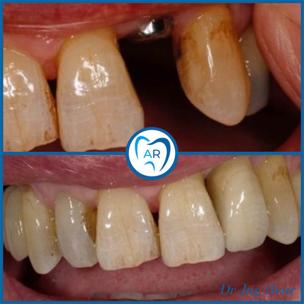 Dental Implant before and after 3 Walsall