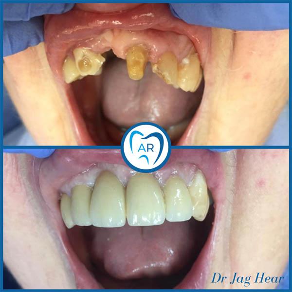 Dental Trauma Before & After 1