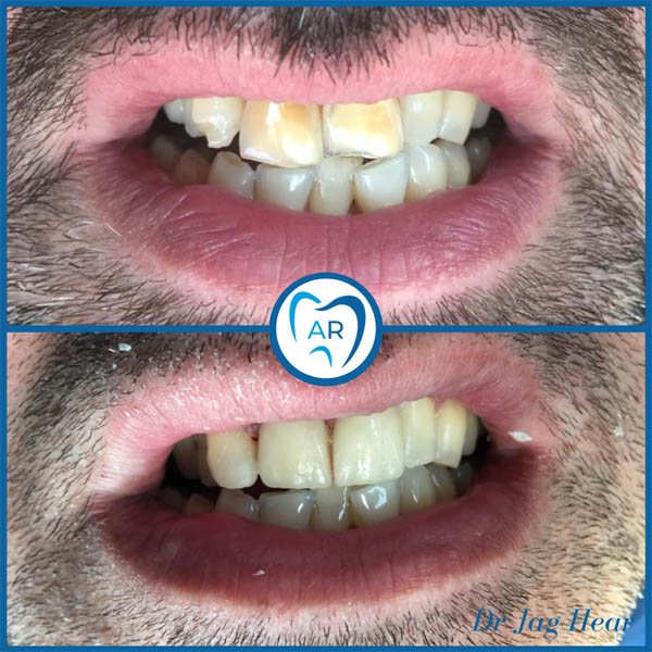 Dental Veneers Before & After 1 Walsall