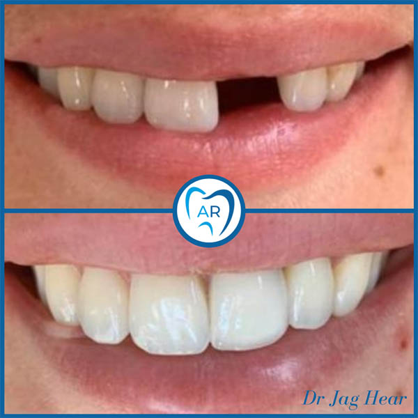 Dental Implant before and after Walsall