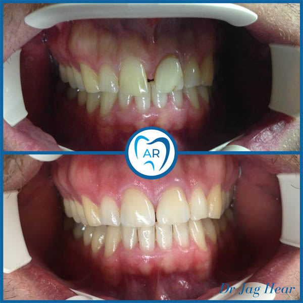 Porcelain Veneers Before and after 2 Walsall