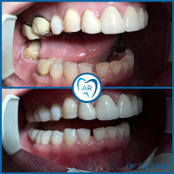 Replacing Old Crowns Before & After 1 Walsall