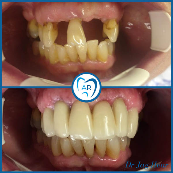 Smile makeover before and after 1