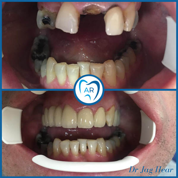 Smile makeover before and after 2