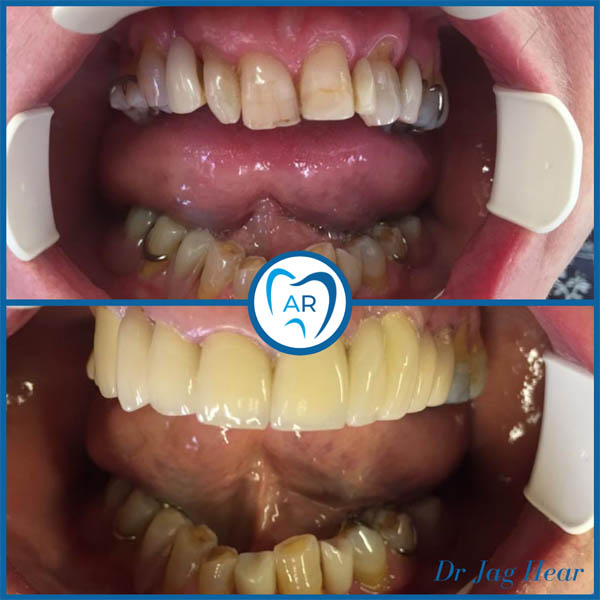 Smile makeover before and after 3