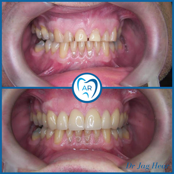 Smile makeover before and after 4