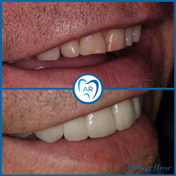Smile makeover before and after 5