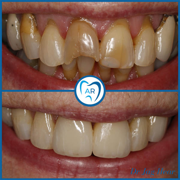 Smile Makeover Before & After 3