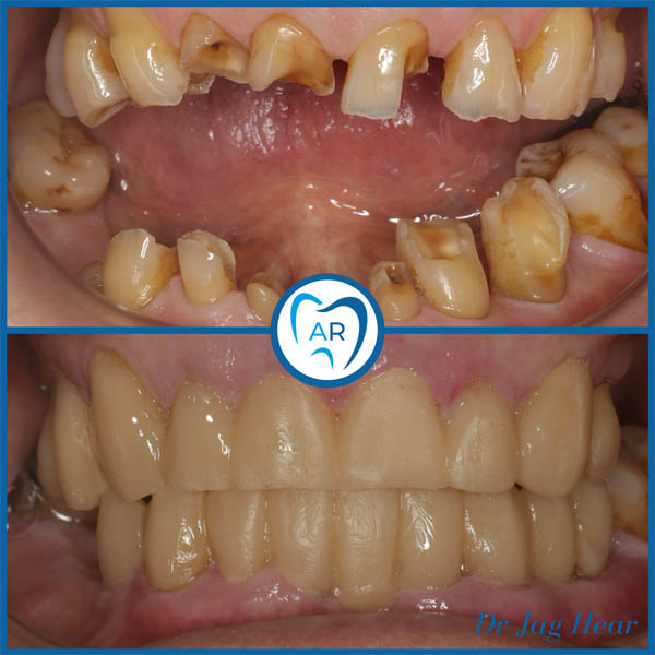 Smile Makeover Before & After
