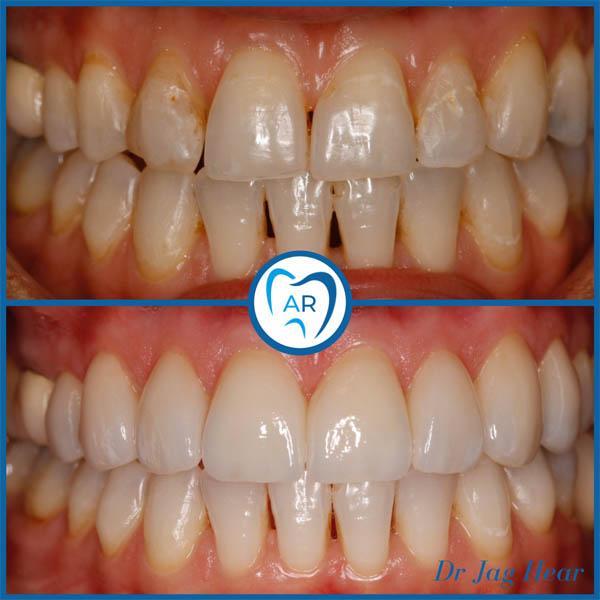 Dental Veneers Smile Makeover Walsall Before & After 1
