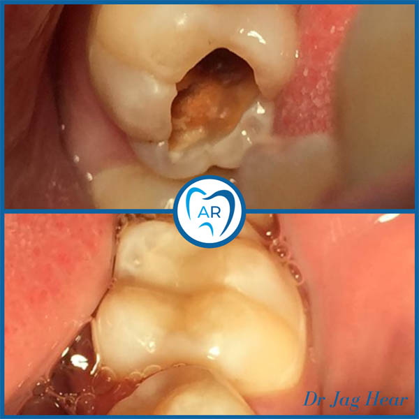 White Fillings Before & After 2